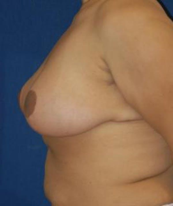 Breast Reduction Gallery - Patient 4861739 - Image 4