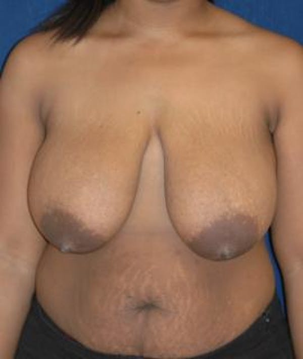 Breast Reduction Gallery - Patient 4861740 - Image 1