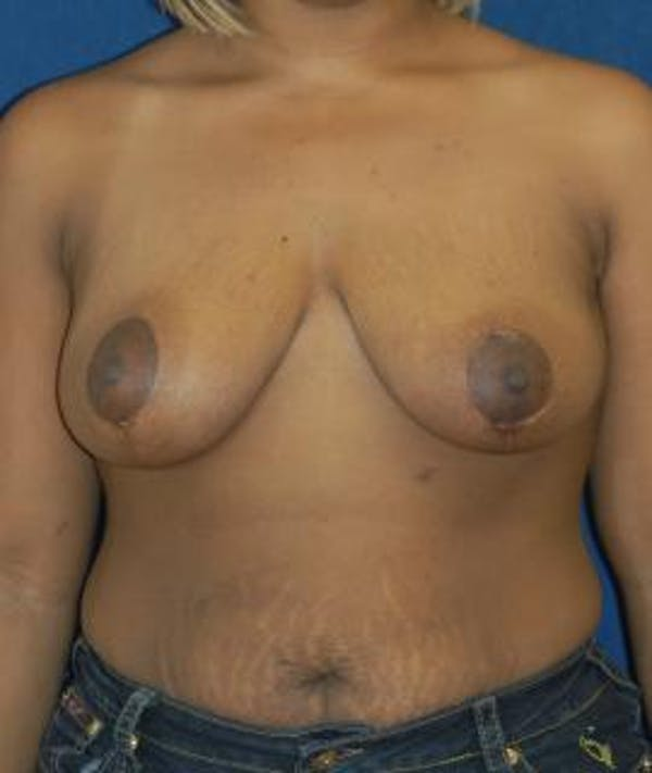 Breast Reduction Gallery - Patient 4861740 - Image 2
