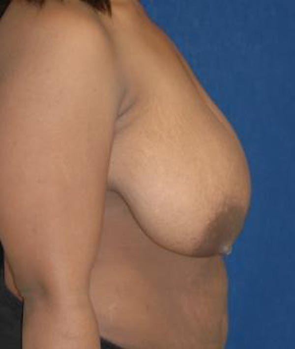 Breast Reduction Gallery - Patient 4861740 - Image 3
