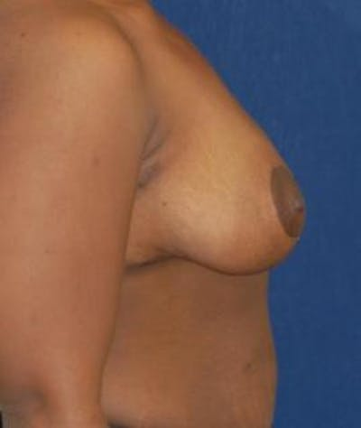 Breast Reduction Gallery - Patient 4861740 - Image 4
