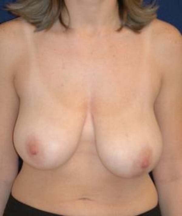 Breast Reduction Gallery - Patient 4861742 - Image 1