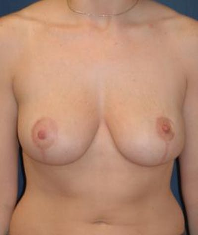 Breast Reduction Gallery - Patient 4861742 - Image 2