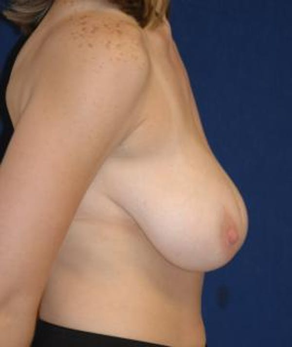 Breast Reduction Gallery - Patient 4861742 - Image 3