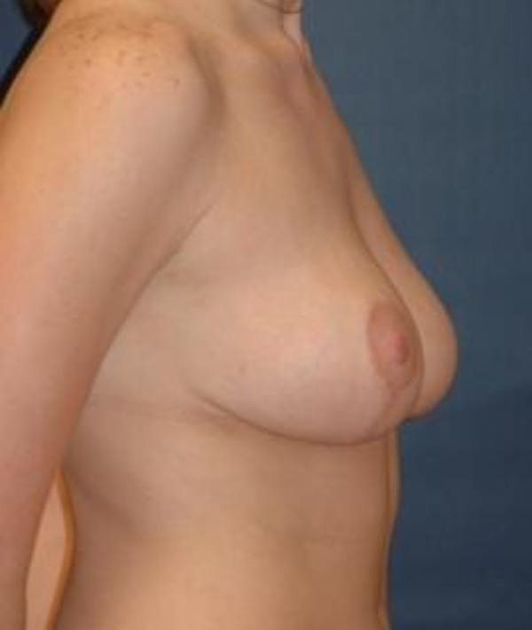 Breast Reduction Gallery - Patient 4861742 - Image 4