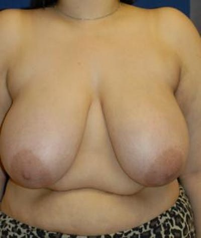 Breast Reduction Gallery - Patient 4861744 - Image 1