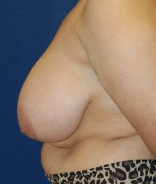 Breast Reduction Gallery - Patient 4861744 - Image 3