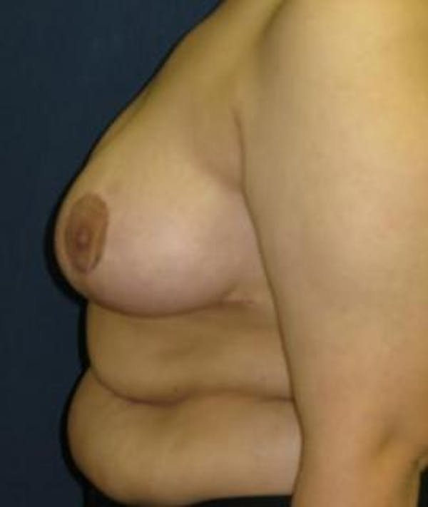 Breast Reduction Gallery - Patient 4861744 - Image 4