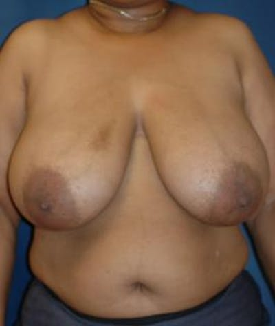 Breast Reduction Gallery - Patient 4861746 - Image 1
