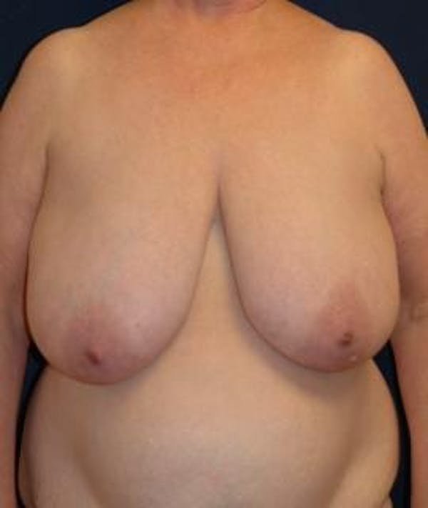 Breast Reduction Gallery - Patient 4861748 - Image 1