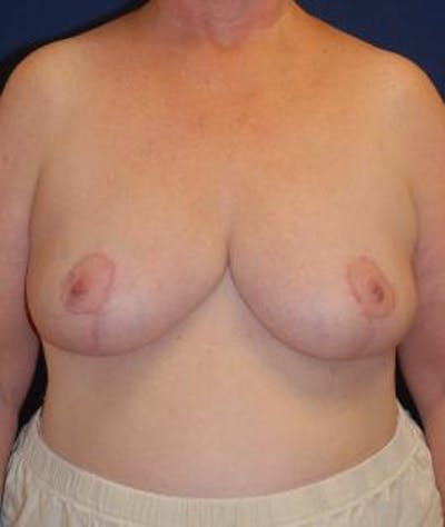Breast Reduction Gallery - Patient 4861748 - Image 2