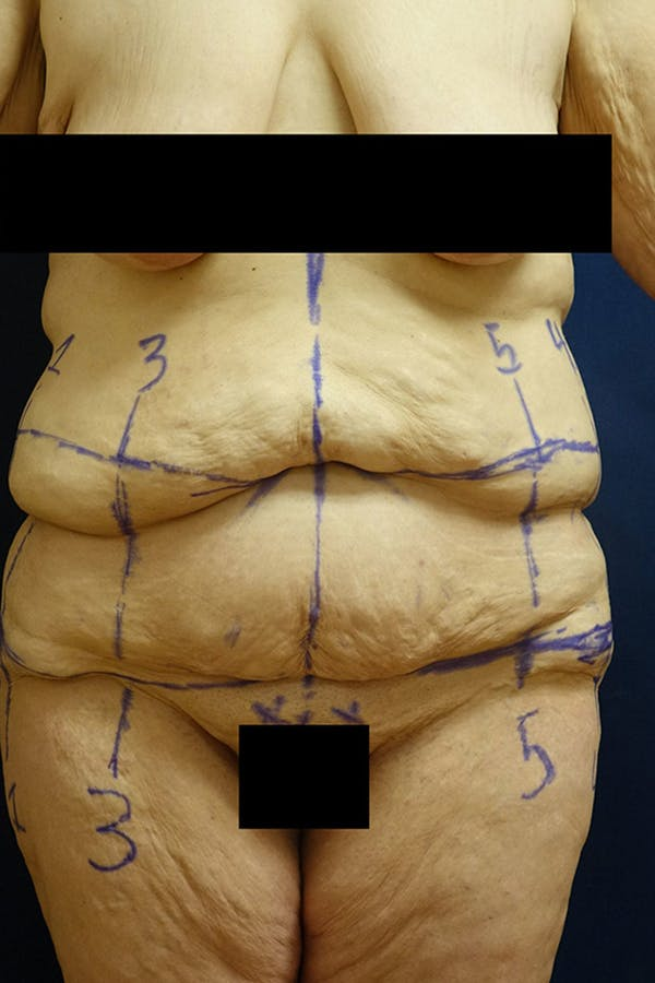 Body Lift Gallery - Patient 4861750 - Image 1
