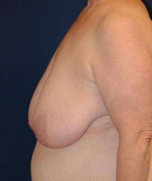 Breast Reduction Gallery - Patient 4861748 - Image 3