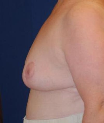Breast Reduction Gallery - Patient 4861748 - Image 4