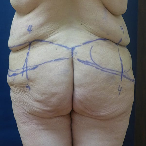 Body Lift Gallery - Patient 4861750 - Image 3