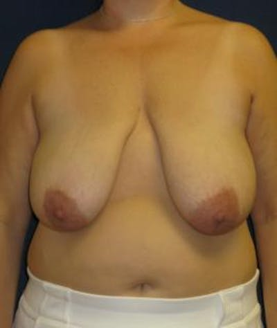 Breast Reduction Gallery - Patient 4861753 - Image 1