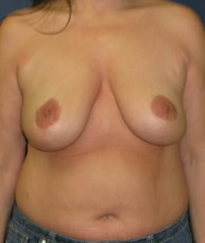 Breast Reduction Gallery - Patient 4861753 - Image 2