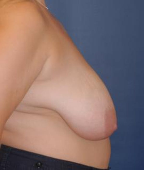Breast Reduction Gallery - Patient 4861753 - Image 3