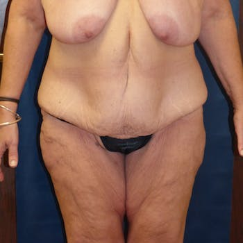 Body Lift Gallery - Patient 4861757 - Image 1