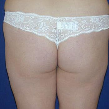 Buttock Lift Gallery - Patient 4861755 - Image 1