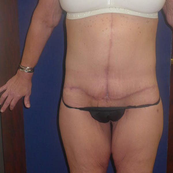 Body Lift Gallery - Patient 4861757 - Image 2