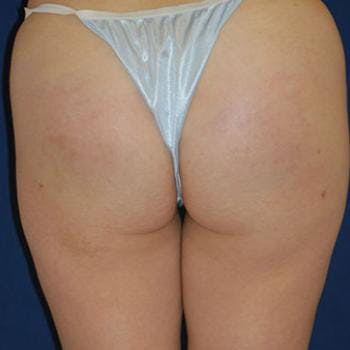 Buttock Lift Gallery - Patient 4861755 - Image 2