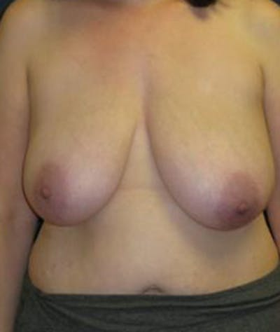 Breast Reduction Gallery - Patient 4861756 - Image 1