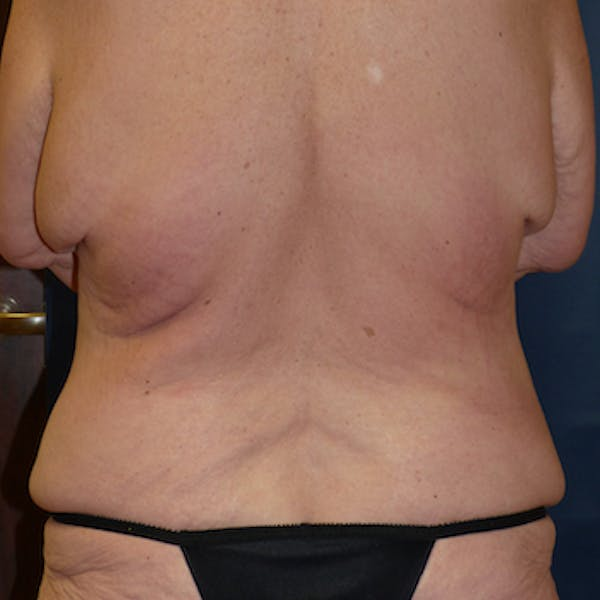 Body Lift Gallery - Patient 4861757 - Image 3