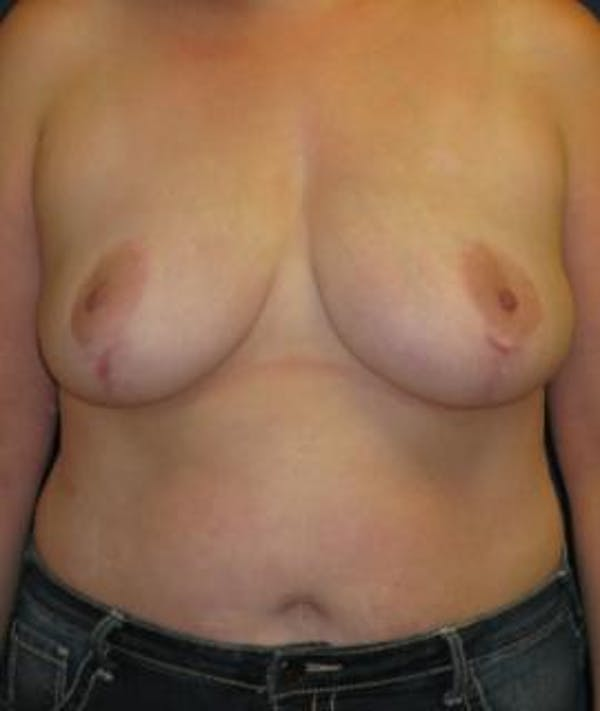 Breast Reduction Gallery - Patient 4861756 - Image 2
