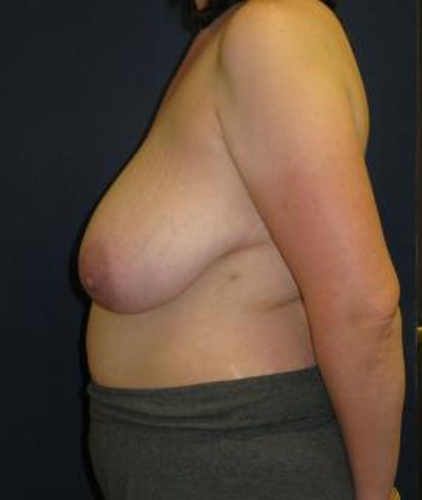 Breast Reduction Gallery - Patient 4861756 - Image 3
