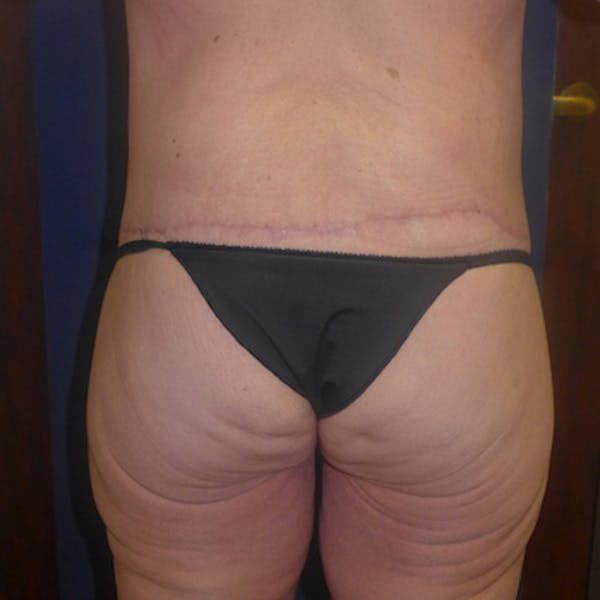 Body Lift Gallery - Patient 4861757 - Image 4