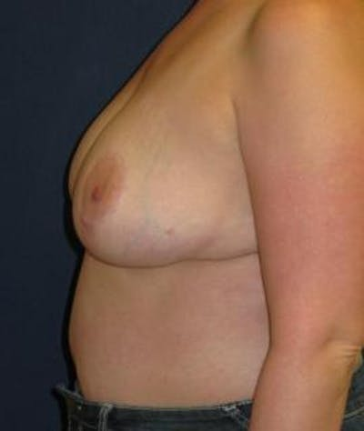 Breast Reduction Gallery - Patient 4861756 - Image 4