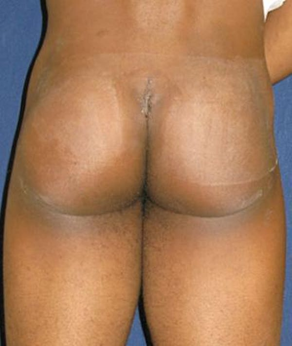 Butt Augmentation Houston