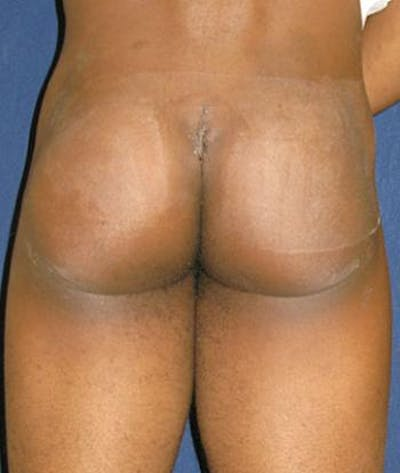 Buttock Lift Gallery - Patient 4861759 - Image 1