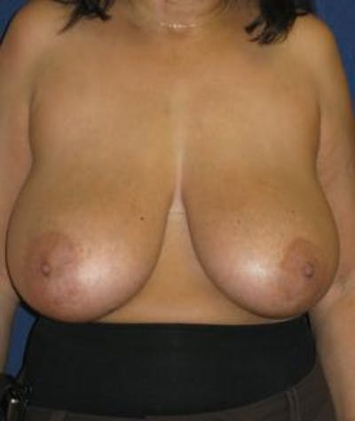Breast Reduction Gallery - Patient 4861760 - Image 1