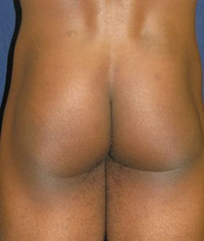 Buttock Lift Gallery - Patient 4861759 - Image 2