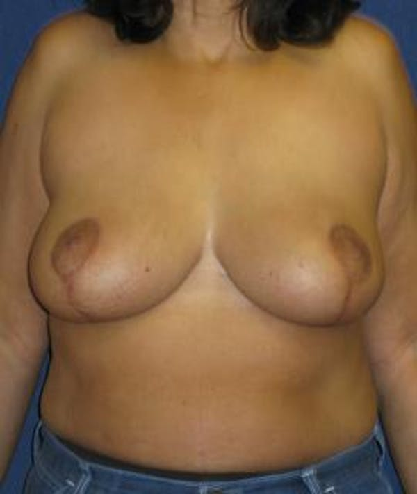 Breast Reduction Gallery - Patient 4861760 - Image 2