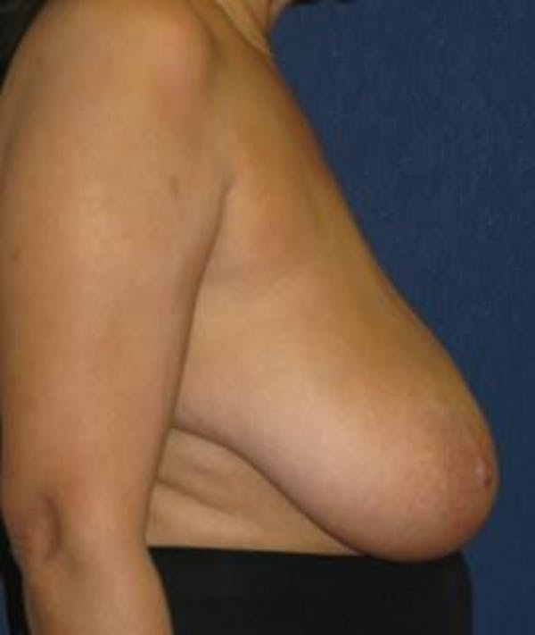 Breast Reduction Gallery - Patient 4861760 - Image 3