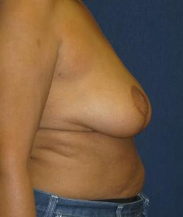 Breast Reduction Gallery - Patient 4861760 - Image 4