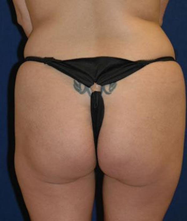 Buttock Lift Gallery - Patient 4861761 - Image 1
