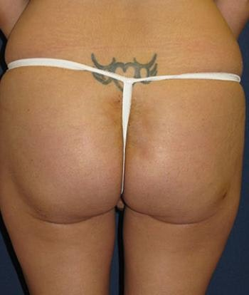 Buttock Lift Gallery - Patient 4861761 - Image 2