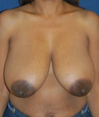 Breast Reduction Gallery - Patient 4861762 - Image 1