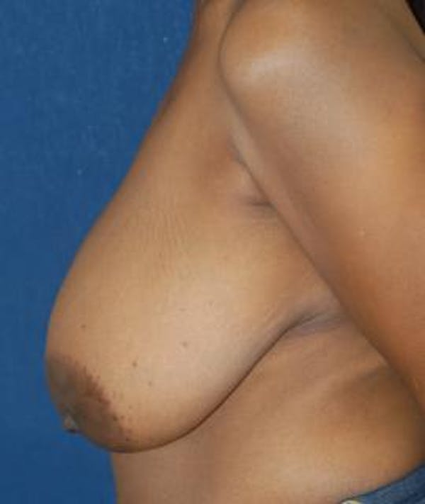 Breast Reduction Gallery - Patient 4861762 - Image 3
