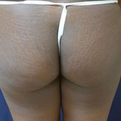 Buttock Lift Gallery - Patient 4861764 - Image 1