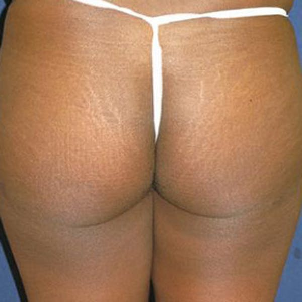 Buttock Lift Gallery - Patient 4861764 - Image 2