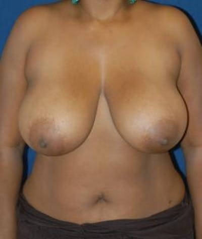 Breast Reduction Gallery - Patient 4861765 - Image 1