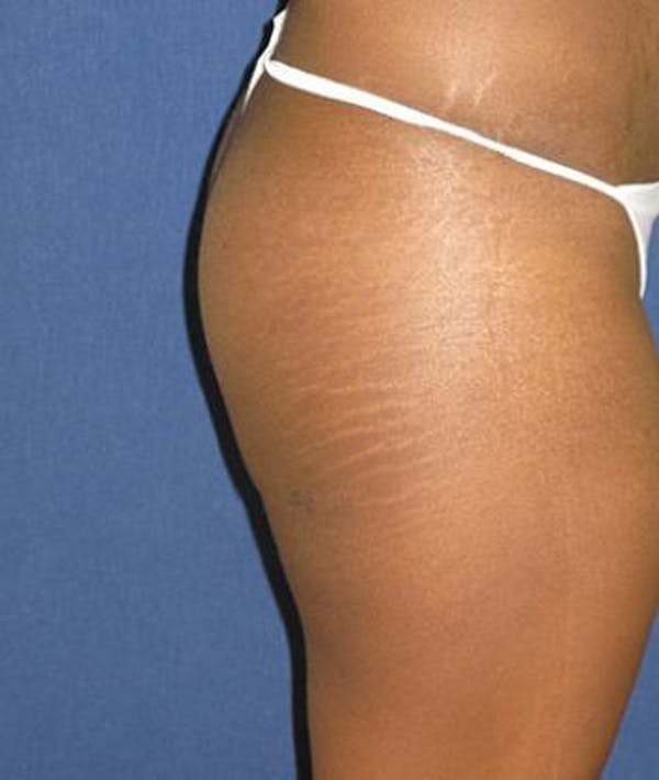 Buttock Lift Gallery - Patient 4861764 - Image 4