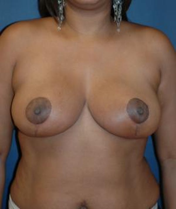 Breast Reduction Gallery - Patient 4861765 - Image 2