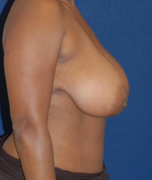 Breast Reduction Gallery - Patient 4861765 - Image 3