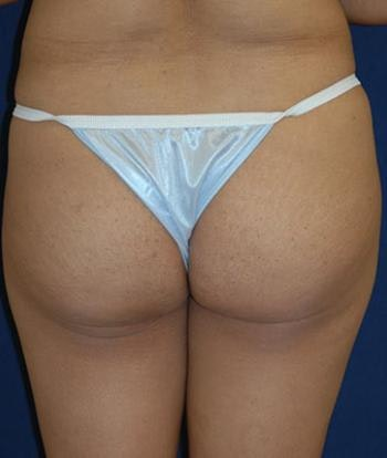 Buttock Lift Gallery - Patient 4861766 - Image 1